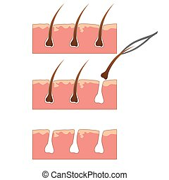 Example of hair removal from skin with tweezers over white...