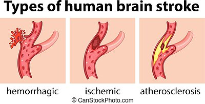 Types of human brain stroke
