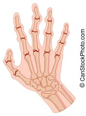 Rheumatoid arthritis in human hand illustration
