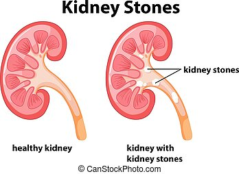 Diagram of kidney stones