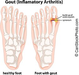 Diagram explanation of Gout in human foot illustration