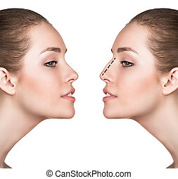 Woman before and after cosmetic nose surgery - Female face,...