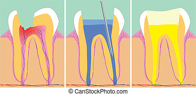 Three phase of dentistry, vector illustration