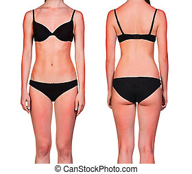 Womans body with sunburn - Womans body with a bad case of...