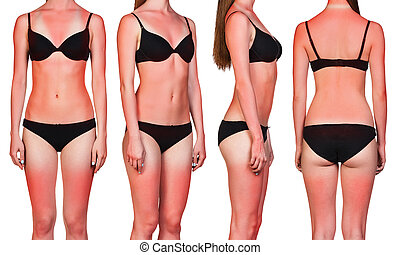 Woman's body with sunburn - Woman's body with a bad case of...