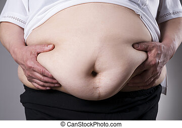 Obesity woman body, fat female belly with a scar from...