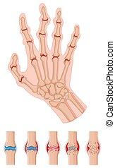Rheumatoid arthritis in human hands illustration