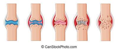 Rheumatoid arthritis in human joints illustration