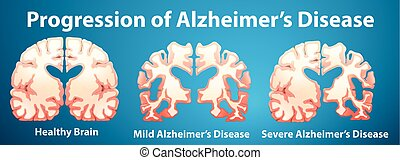 Progression of Alzheimers disease on blue background...