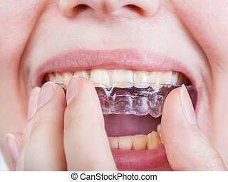 young woman puts clear aligner close up - young woman puts...