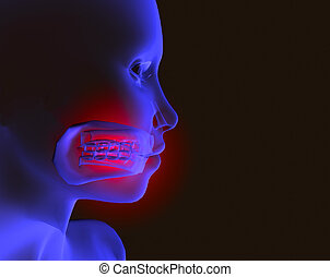 Pain and mouth 2 - X-ray image of head with mouth pain