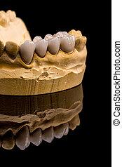 Dental prosthesis