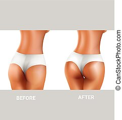 before and after of buttocks - before and after of sexy...