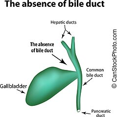 The absence of bile duct. Pathology of the gallbladder....