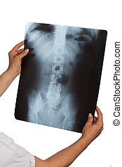 doctor with xray - female doctor looking at a xray with...