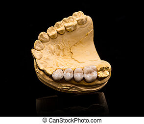 Artificial teeth - Top view of artificial teeth on black...
