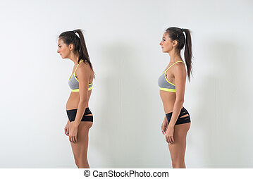 Woman with impaired posture position defect scoliosis and...