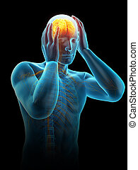 headache/ migraine - medically accurate 3d illustration of...