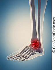 the painful ankle - medically accurate 3d illustration of...