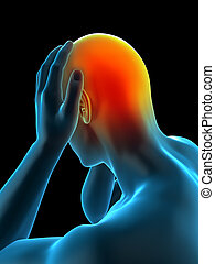 of headache/ migraine - medically accurate 3d illustration...