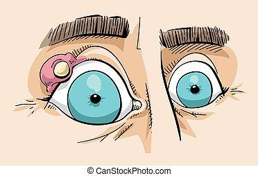 Eye Stye - Cartoon of a close up of a stye on the eyelid of...