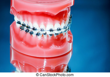 Dentures with braces on blue background