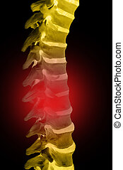 Human Spinal-column model, isolated on black, with red for...