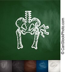 hip injury icon. Hand drawn vector illustration. Chalkboard...