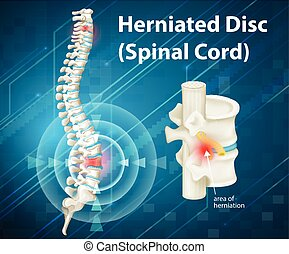 Diagram showing herniated Disc illustration