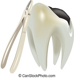 molar tooth with caries - molar tooth with tooth decay and...