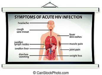 Chart showing symptoms of acute HIV infection illustration
