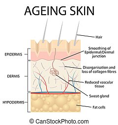 Old skin anatomy - Old skin anatomy characterized by...