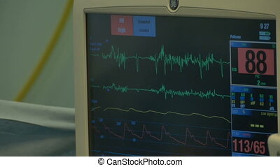 Heart Beating Medical Monitor - A ECG display monitor in the...