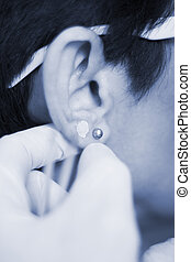 Auriculartherapy ear seed treatment - Auriculartherapy...