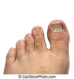 Cracked Fungus Toe Nail - Closeup of a hairy human foot and...