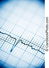 Electrocardiogram - Close up of an electrocardiogram in...