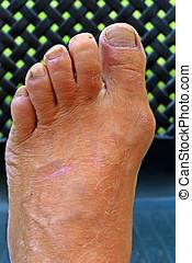 Bunion hallux valgus on dark background - Foot with an...
