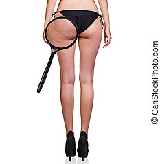 Woman with cellulitis on buttocks