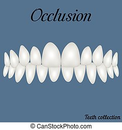 occlusion clenched teeth - bite, closure of teeth - incisor,...