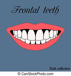 Frontal teeth - incisor, canine, premolar, molar upper and...