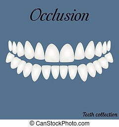 occlusion - bite, closure of teeth - incisor, canine,...