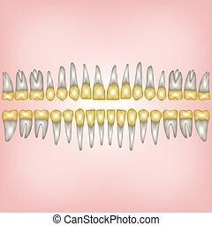gold tooth - 3D a number of gold dental crowns with the...