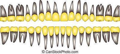 3D gold crown tooth - 3D a number of gold dental crowns with...