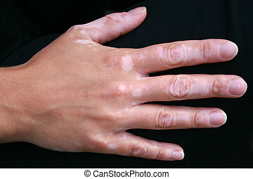 A hand with vitiligo skin condition - A woman\'s hand with...