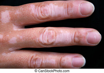A hand with vitiligo skin condition - A womans hand with...