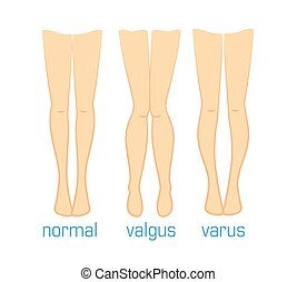 valgus varus and normal - Vector medical illustration types...