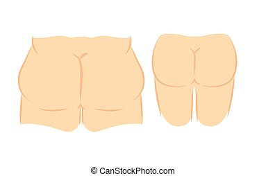 Butt lift correction - Medical vector illustration two types...