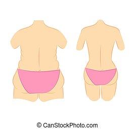 Butt lift correction waist line