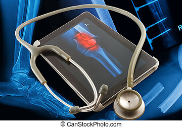 Modern medical tablet on x-rays images background