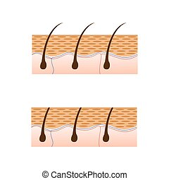 Depilation and skin with hair sectional view. Schematic...